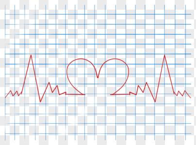 心电图图片