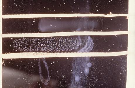 幻灯片上进行该凝集试验中对霍乱弧菌的识别诊断过程中使用。图片