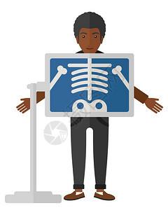 一名非洲美国病人的x光屏幕显示骨骼矢量平板设计插图在白色背景中孤立在x光检查过程中病人图片