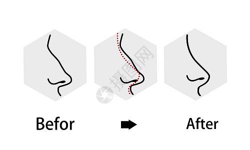 鼻子整形修复过程图片
