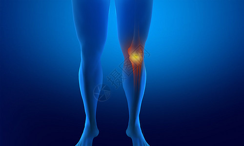 受伤骨折腿图片