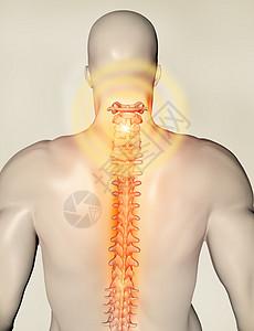 背部颈椎骨折图片