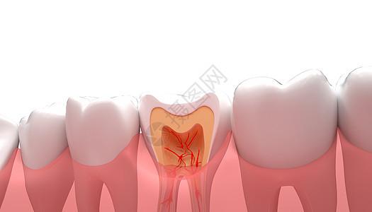 牙齿疾病图片