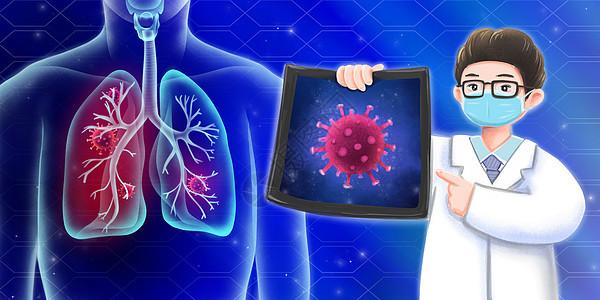 医生科学解读新型冠状病毒肺炎图片