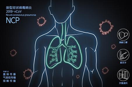 人体肺炎疫情图片