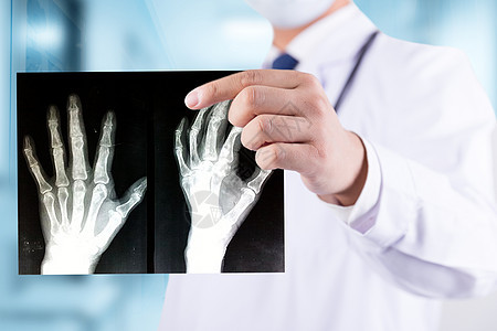 拿着手部X片的医生图片