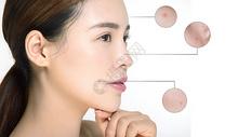 女性祛痘美白护肤图片