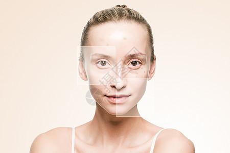 粉刺皮肤图片