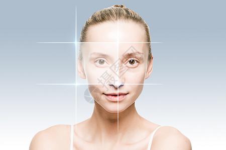 美容去眼袋技术图片
