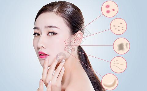 女性皮肤病图片