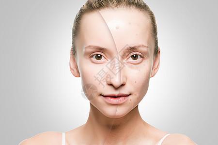 美容祛痘前后对比图片