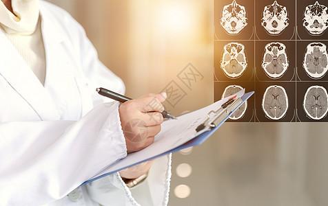 脑部检查图片
