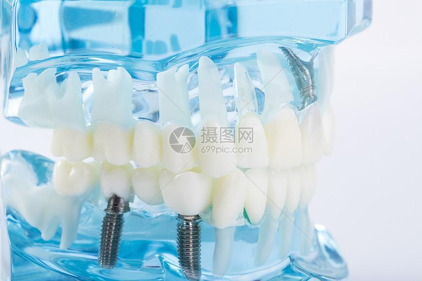 牙齿模型图片