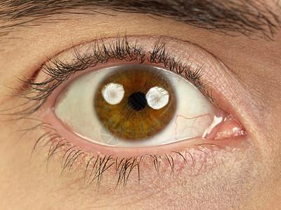 棕色眼睛图片