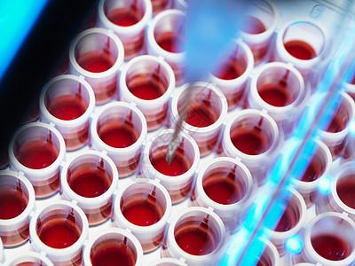 血液筛查图片