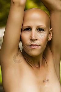 年轻女性身患癌症图片