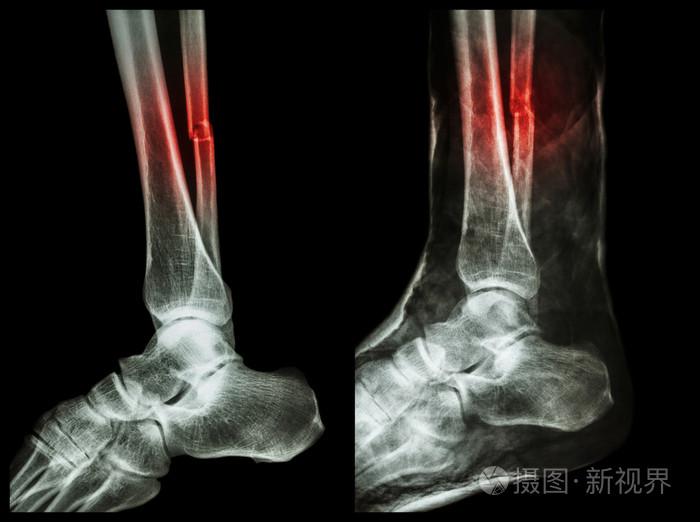 位 骨折 遠 腓骨 端 脛骨遠位端骨折について